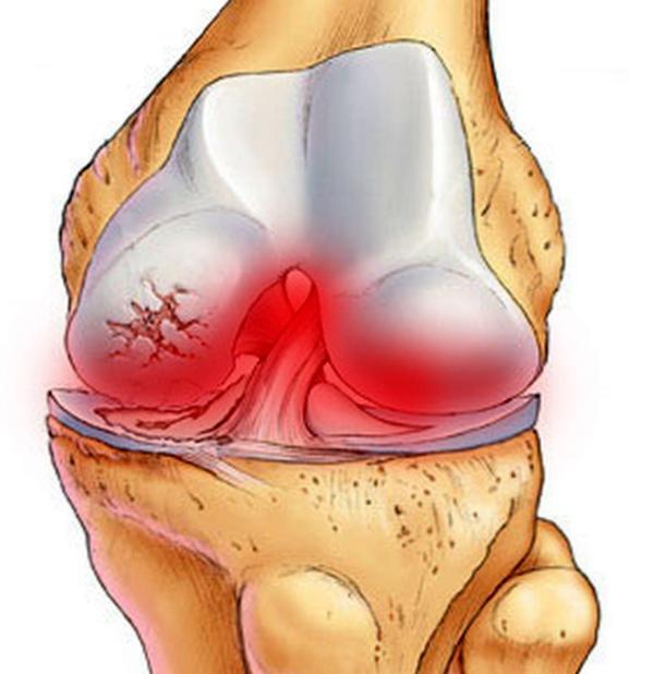 Лечение воспаление суставов народными средствами в домашних